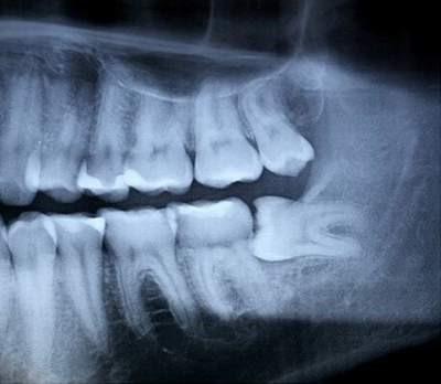 Nhổ răng khôn: Những điều cần biết