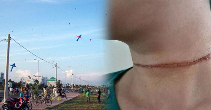 Dây diều cứa ngang gây vết thương dài trên cổ