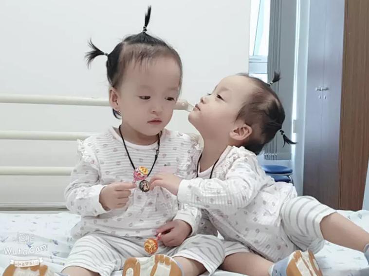 Diệu Nhi được phẫu thuật hoàn chỉnh đường tiêu hóa, cặp song sinh Trúc Nhi- Diệu Nhi tíu tít chờ ngày xuất viện
