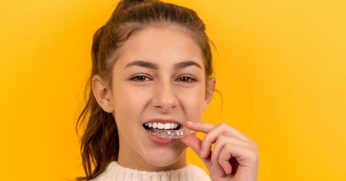 máng tẩy trắng răng; tẩy trắng răng tại nhà; tẩy trắng răng có hại không? Lưu ý khi tẩy trắng răng tại nhà;