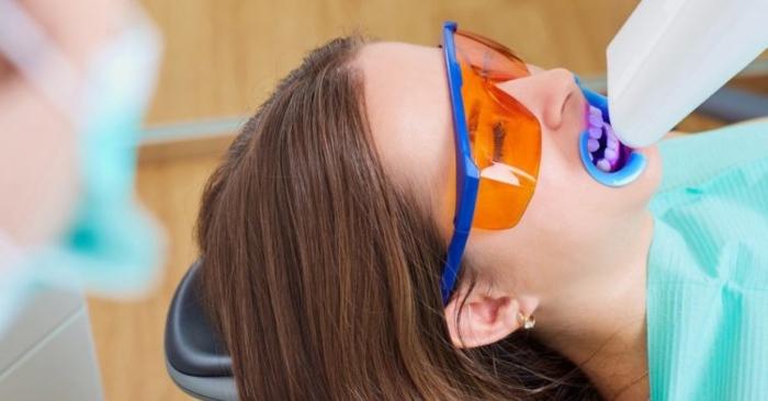 Nên tẩy trắng răng bằng phương pháp nào? Tác hại của tẩy trắng răng?; gía tẩy trắng răng ở bệnh viện Răng Hàm Mặt;