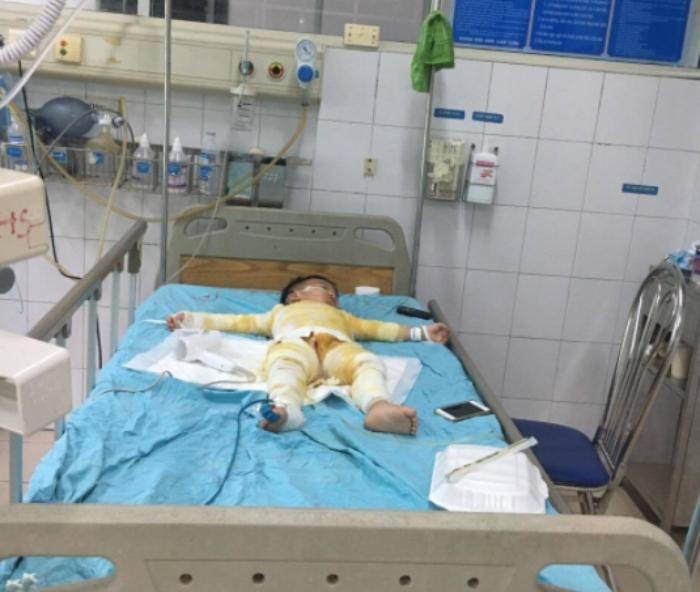 Xót xa cảnh cậu bé ngã vào nồi canh nóng, bỏng nặng nguy kịch