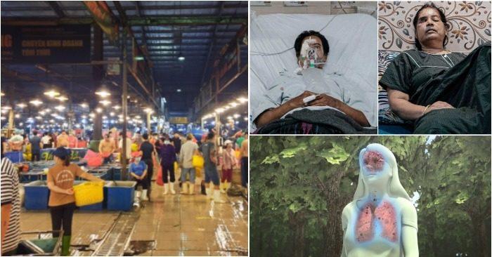 Từ trái qua: Một chợ đầu mối ở TP. HCM; 2 nạn nhân nhiễm nấm đen ở Ấn Độ phải khoét mắt; mô phỏng vị trí nấm đen tấn công trên thân thế (ảnh chụp màn hình báo VTC/Zing & Next).