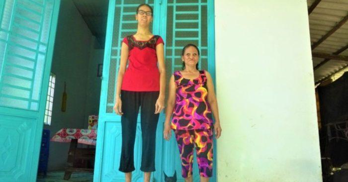 Trà Vinh: Cô gái có chiều cao 2 mét, ao ước được một lần mang dép nữ
